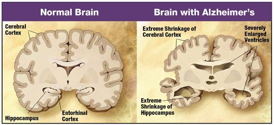 תוצאת תמונה עבור neurons vs age